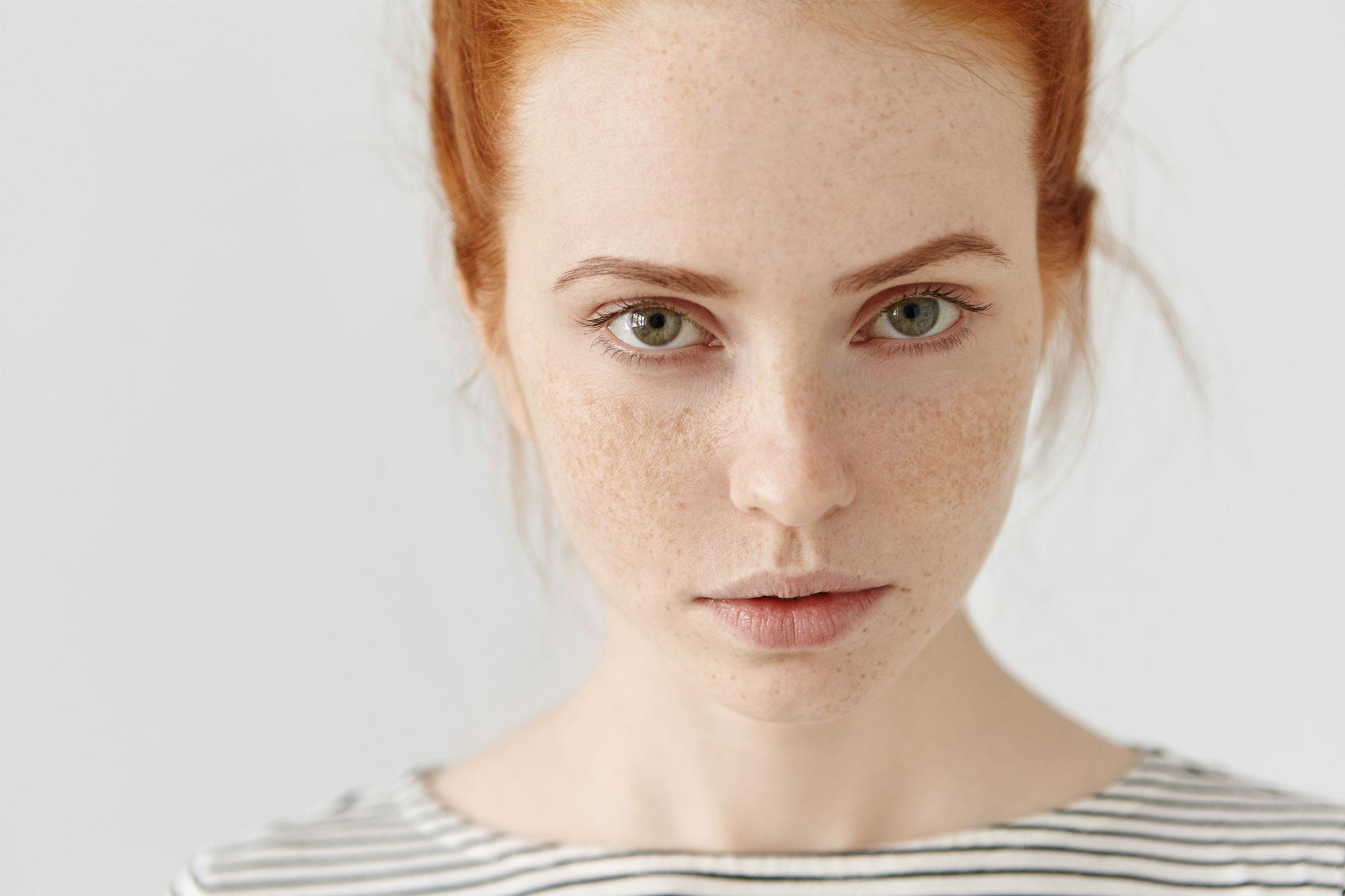 very pale skin type
