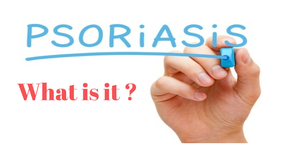 What is psoriasis ?